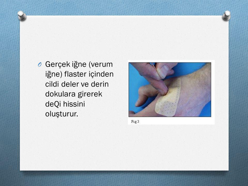 O Gerçek iğne (verum iğne) flaster içinden cildi deler ve derin dokulara girerek deQi hissini oluşturur.