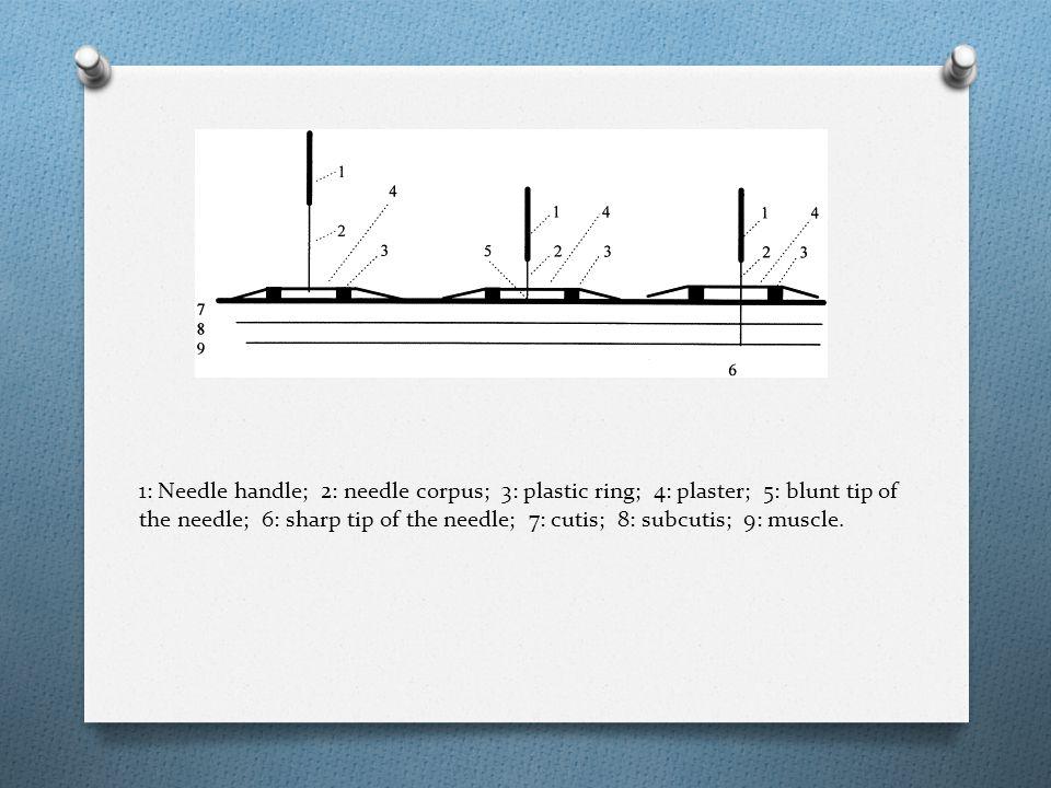 1: Needle handle; 2: needle corpus; 3: plastic ring; 4: plaster; 5: blunt tip of the needle; 6: sharp tip of the needle; 7: cutis; 8: subcutis; 9: muscle.