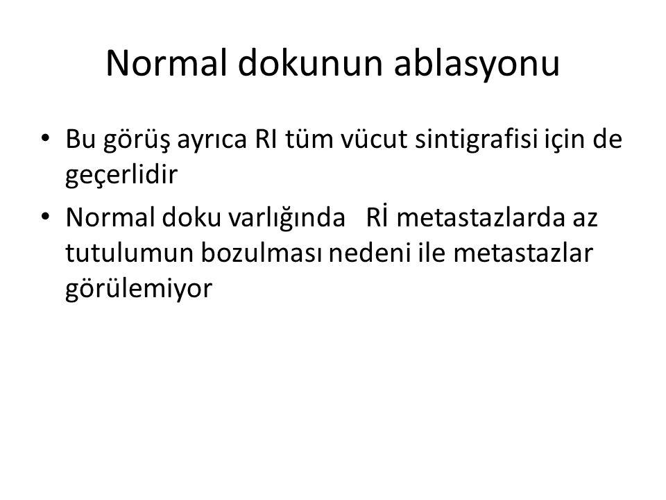 Normal dokunun ablasyonu Bu görüş ayrıca RI tüm vücut sintigrafisi için de geçerlidir Normal doku varlığında Rİ metastazlarda az tutulumun bozulması n