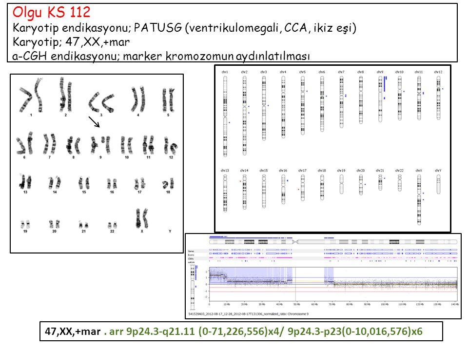 Olgu KS 112 Karyotip endikasyonu; PATUSG (ventrikulomegali, CCA, ikiz eşi) Karyotip; 47,XX,+mar a-CGH endikasyonu; marker kromozomun aydınlatılması 47,XX,+mar.