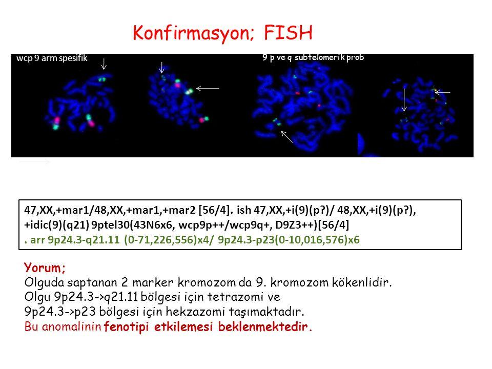 Konfirmasyon; FISH wcp 9 arm spesifik 9 p ve q subtelomerik prob 47,XX,+mar1/48,XX,+mar1,+mar2 [56/4].