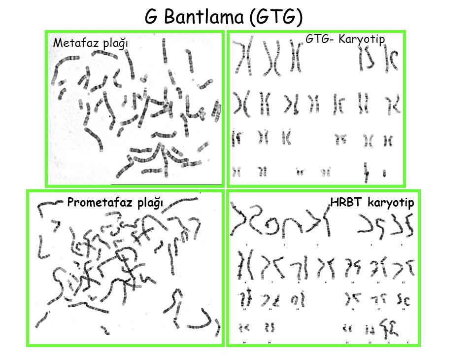 G Bantlama (GTG) Metafaz plağı GTG- Karyotip Prometafaz plağıHRBT karyotip