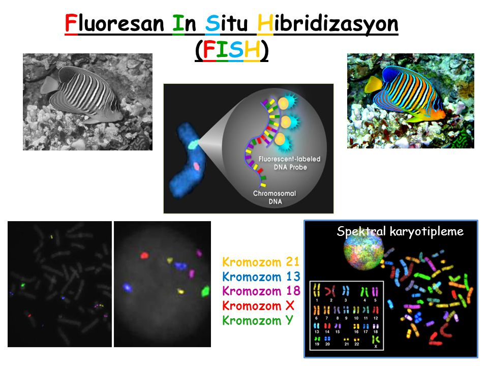 Fluorescence in situ hybridization (FISH) Need to suspect a specific diagnosis! Fluoresan In Situ Hibridizasyon (FISH) Kromozom 21 Kromozom 13 Kromozo