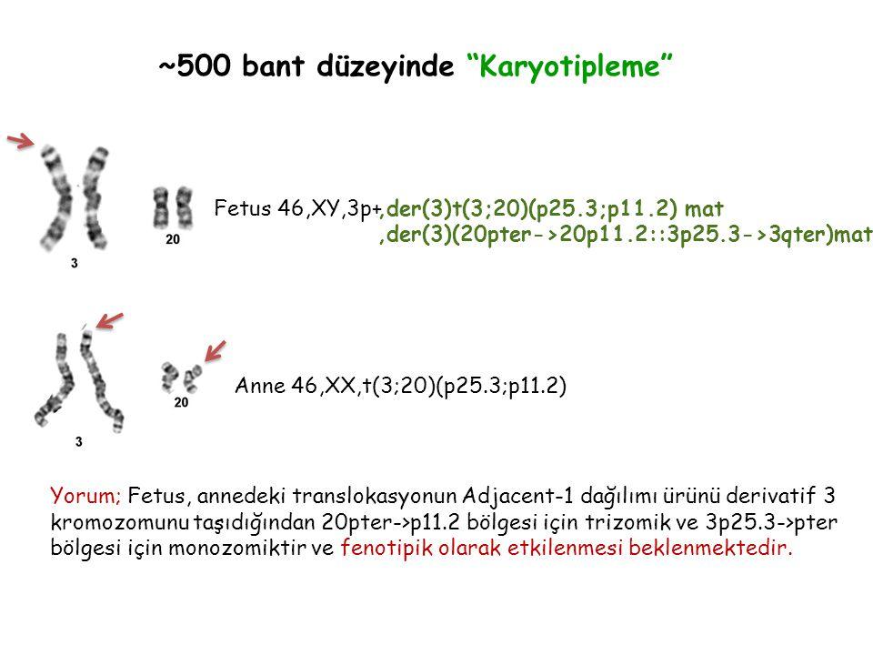 ~500 bant düzeyinde Karyotipleme Fetus 46,XY,3p+ Anne 46,XX,t(3;20)(p25.3;p11.2),der(3)t(3;20)(p25.3;p11.2) mat,der(3)(20pter->20p11.2::3p25.3->3qter)mat Yorum; Fetus, annedeki translokasyonun Adjacent-1 dağılımı ürünü derivatif 3 kromozomunu taşıdığından 20pter->p11.2 bölgesi için trizomik ve 3p25.3->pter bölgesi için monozomiktir ve fenotipik olarak etkilenmesi beklenmektedir.