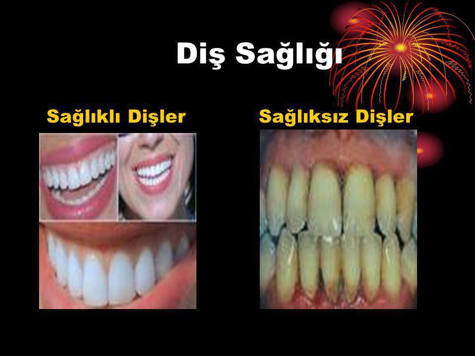 Diş Sağlığı Sağlıklı Dişler Sağlıksız Dişler