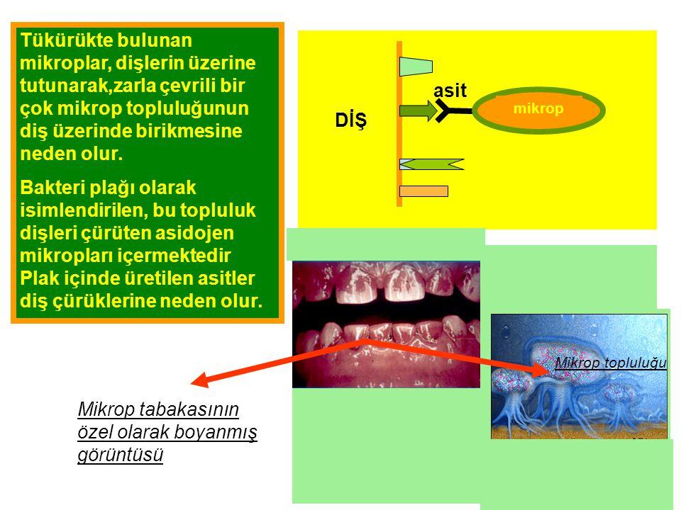 Tükürükte bulunan mikroplar, dişlerin üzerine tutunarak,zarla çevrili bir çok mikrop topluluğunun diş üzerinde birikmesine neden olur.