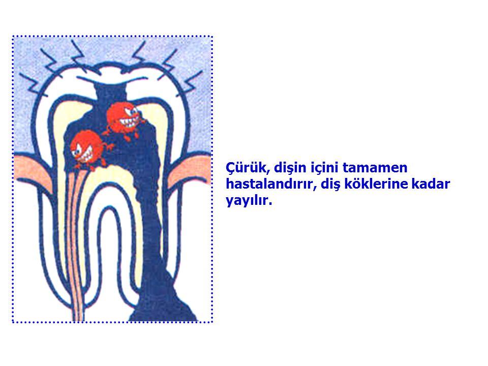 Çürük, iyice büyür. Sinirlere ve damarlara kadar iner. İşte o zaman dişimizin ağrısı ve sızlaması artar. Sonunda ;