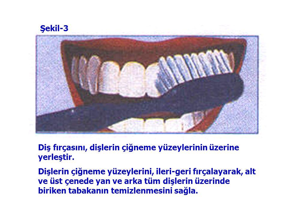 Üst ve alt çenede; ön-yan-arka tüm dişlerin ön yüzlerini, şekilde görüldüğü gibi temizle. Şekil-2