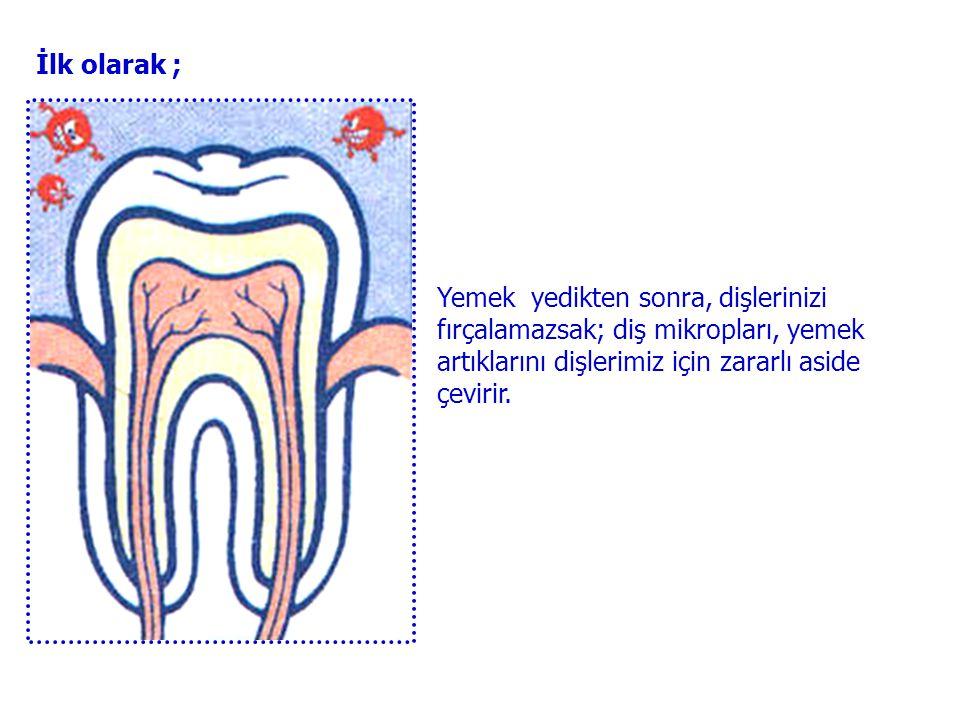 Eğer yemeklerden sonra dişlerinizi fırçalamazsanız, üzerinde kalan diş mikropları dişlerimizin çürümesine neden olur. Nasıl çürüttüğünü görelim bakalı