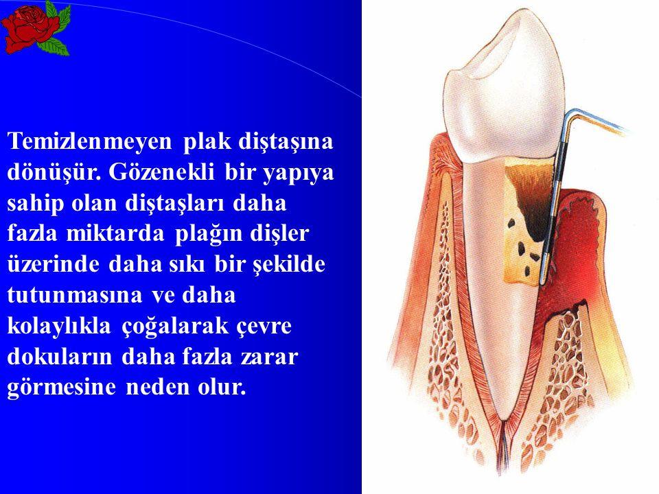 Plak çoğaldıkça doku kaybı fazlalaşır, sonuçta dişin desteğini kaybedip önce sallanmasına, sonra yer değiştirmesine ve nihayet dişin kaybına neden olur.