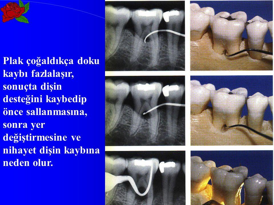 Plak çoğaldıkça doku kaybı fazlalaşır, sonuçta dişin desteğini kaybedip önce sallanmasına, sonra yer değiştirmesine ve nihayet dişin kaybına neden olu