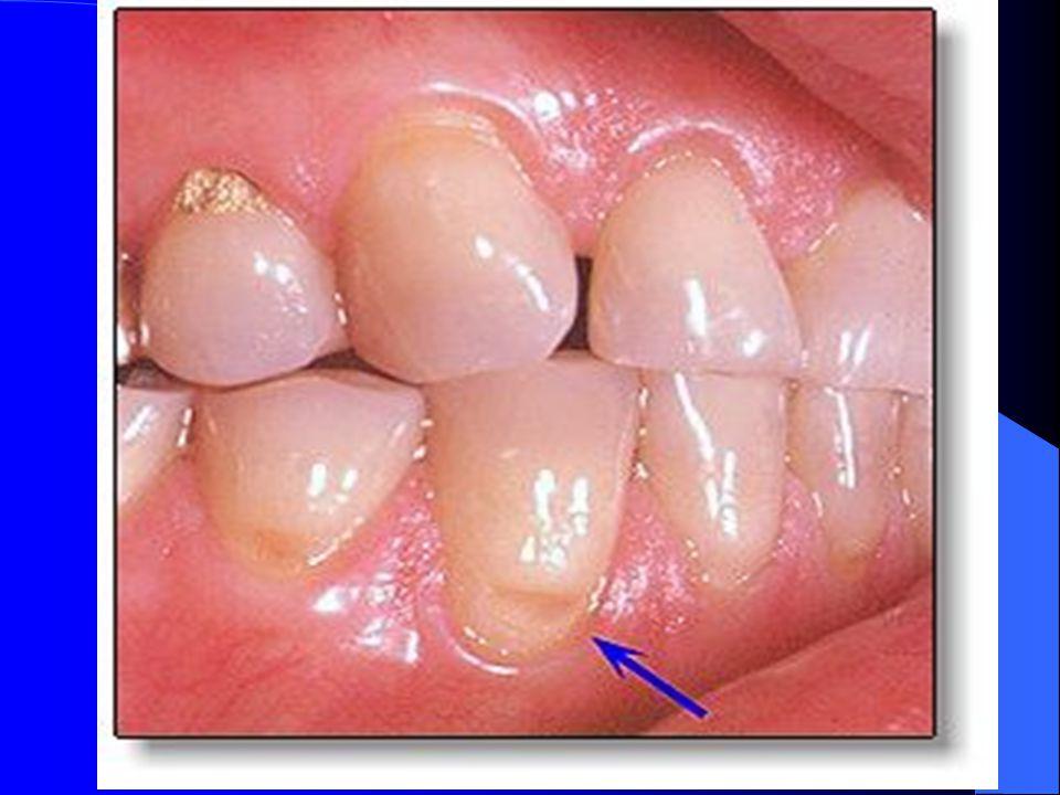 Ağız hijyeni Ağız hijyeni sağlanmasında,dişlerin her yemekten sonra ve gece yatarken fırçalanması önerilmektedir.