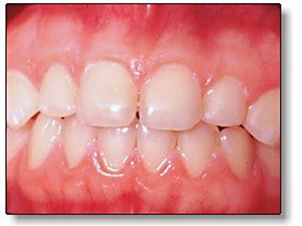 Zamanımızda ağız bakımı Türkiye'de diş çürükleri oranı çok yüksektir.