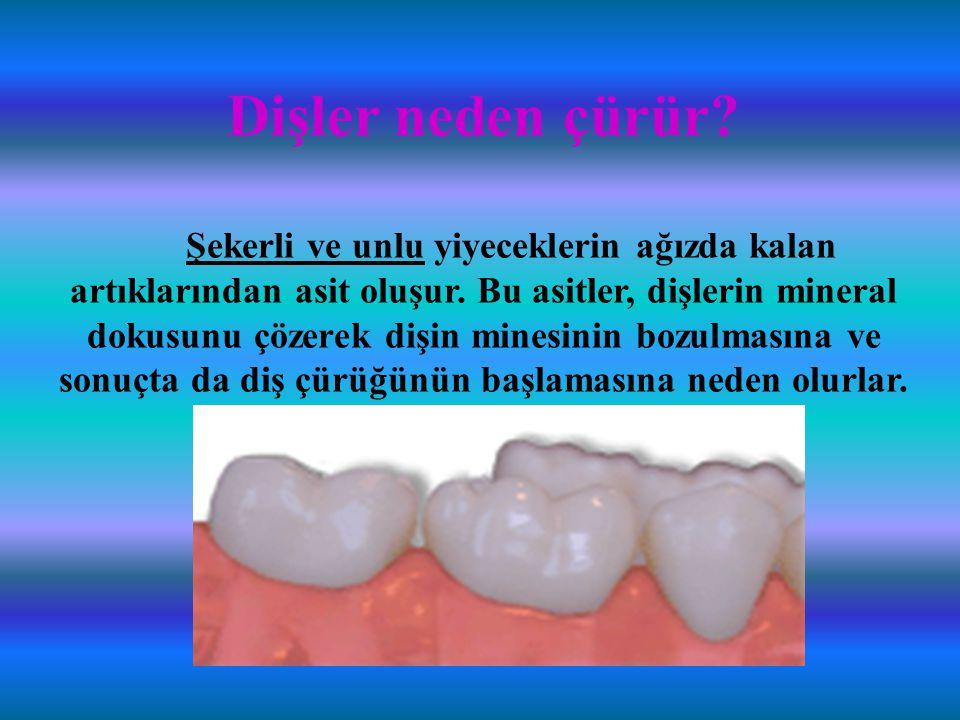 Dişler neden çürür. Şekerli ve unlu yiyeceklerin ağızda kalan artıklarından asit oluşur.