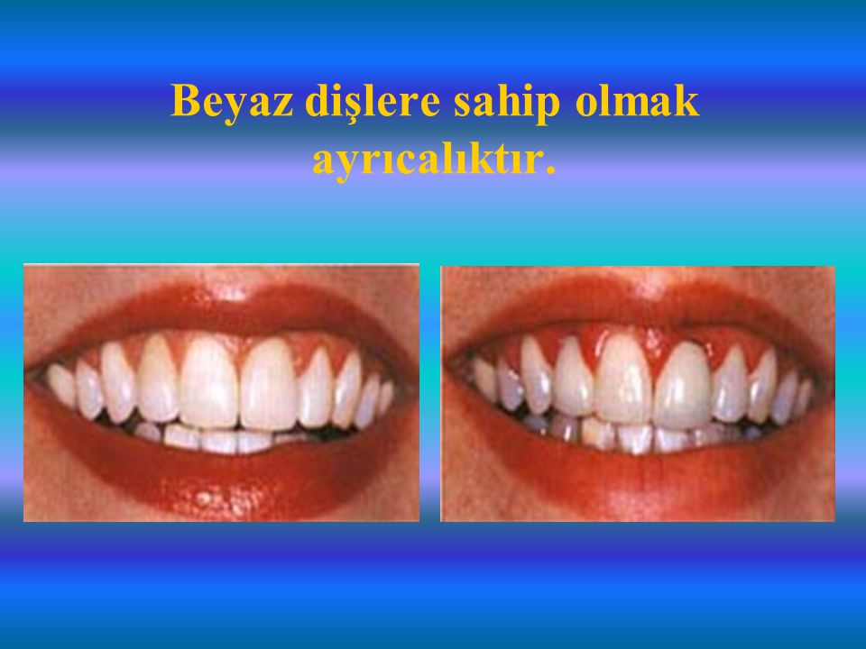 Beyaz dişlere sahip olmak ayrıcalıktır.