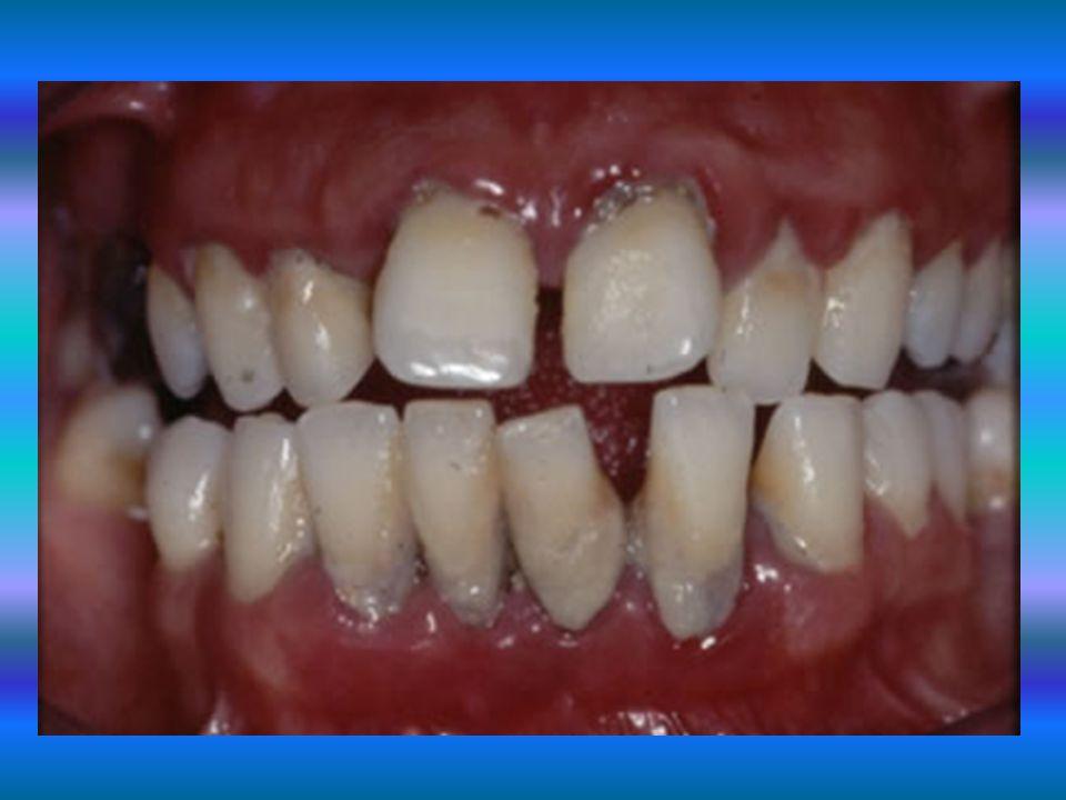 ASLA ! Başkasının diş fırçası kullanılmamalıdır.