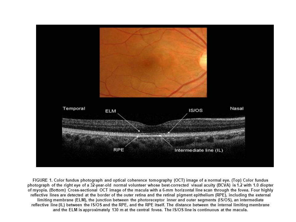 FIGURE 1. Color fundus photograph and optical coherence tomography (OCT) image of a normal eye.