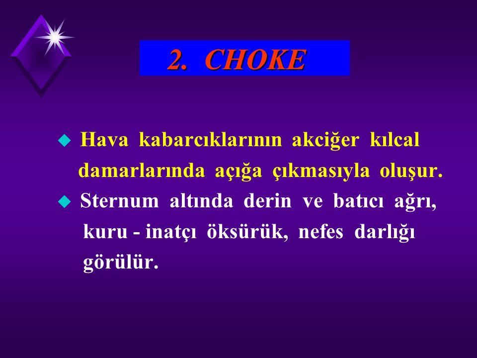 2. CHOKE u Hava kabarcıklarının akciğer kılcal damarlarında açığa çıkmasıyla oluşur. u Sternum altında derin ve batıcı ağrı, kuru - inatçı öksürük, ne