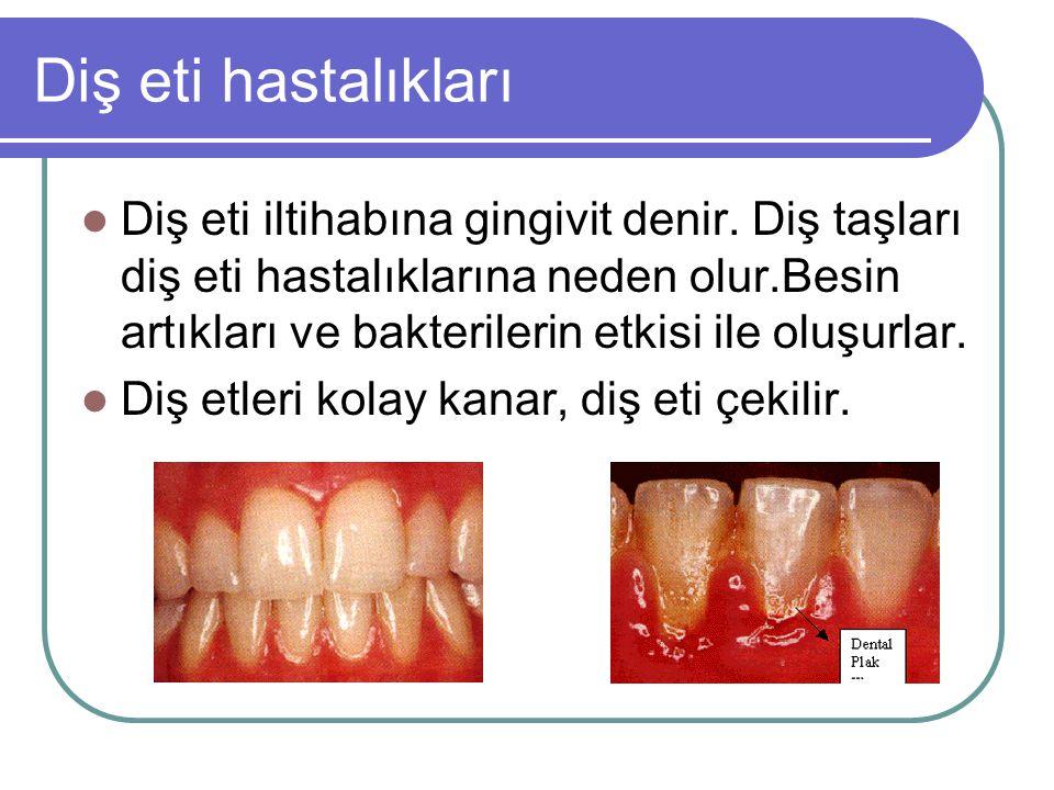 Diş eti hastalıkları Diş eti iltihabına gingivit denir. Diş taşları diş eti hastalıklarına neden olur.Besin artıkları ve bakterilerin etkisi ile oluşu