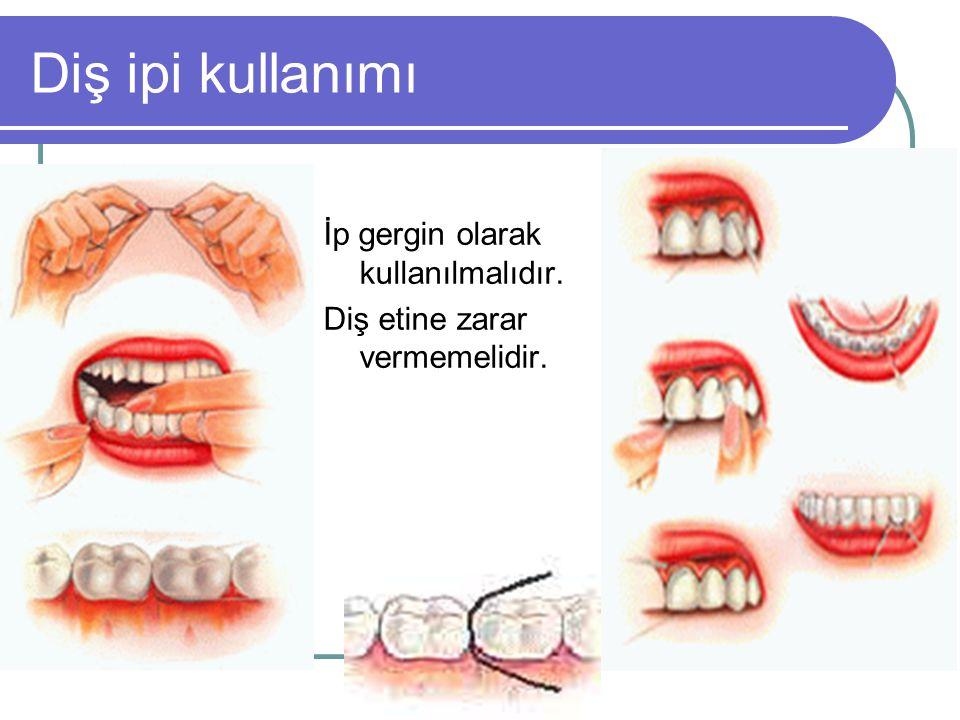 Diş ipi kullanımı İp gergin olarak kullanılmalıdır. Diş etine zarar vermemelidir.