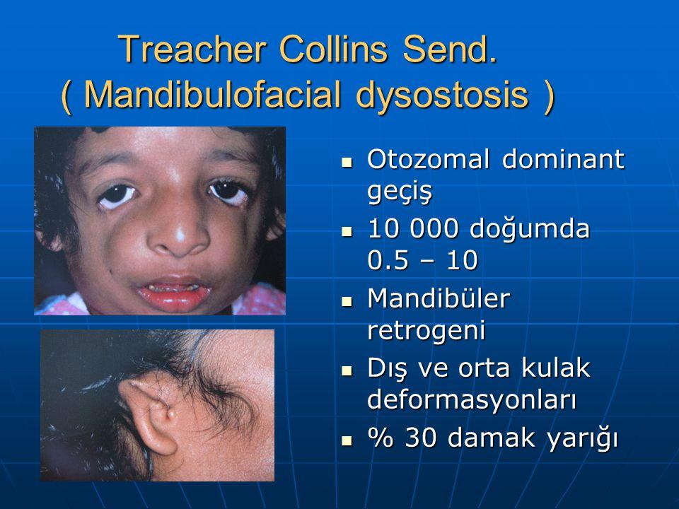 Treacher Collins Send. ( Mandibulofacial dysostosis ) Otozomal dominant geçiş Otozomal dominant geçiş 10 000 doğumda 0.5 – 10 10 000 doğumda 0.5 – 10