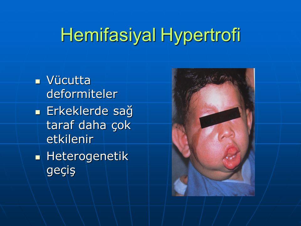 Hemifasiyal Hypertrofi Vücutta deformiteler Vücutta deformiteler Erkeklerde sağ taraf daha çok etkilenir Erkeklerde sağ taraf daha çok etkilenir Heter