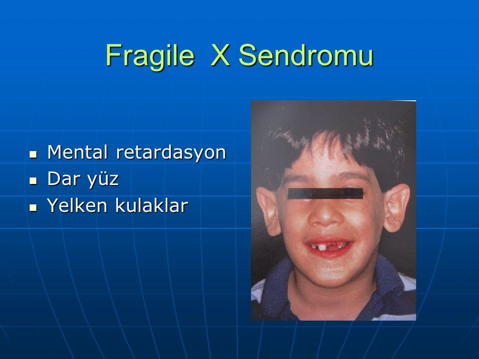 Fragile X Sendromu Mental retardasyon Mental retardasyon Dar yüz Dar yüz Yelken kulaklar Yelken kulaklar