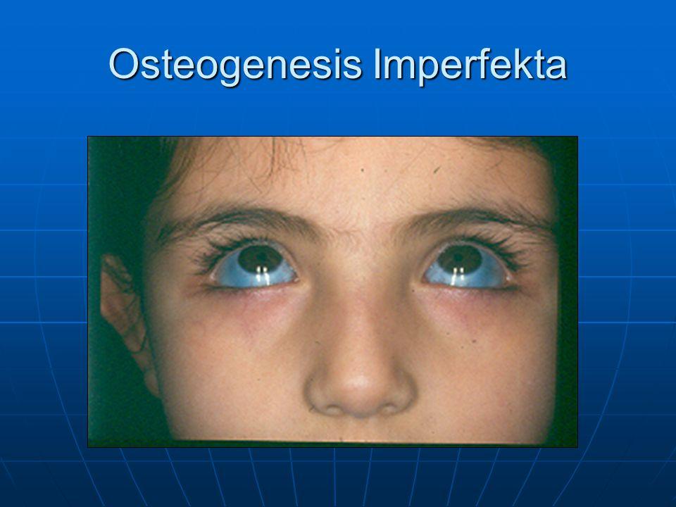 Osteogenesis Imperfekta