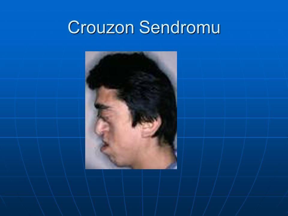 Crouzon Sendromu