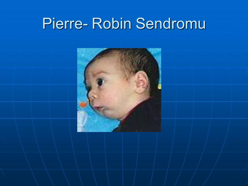 Pierre- Robin Sendromu