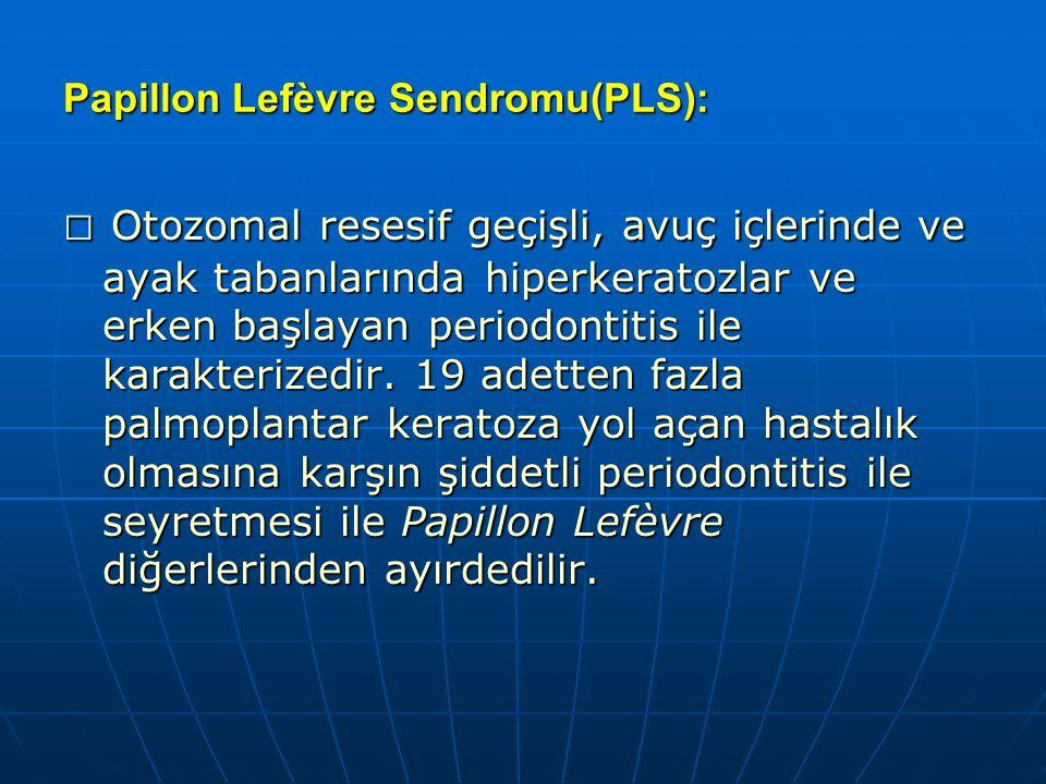 Papillon Lefèvre Sendromu(PLS): □ Otozomal resesif geçişli, avuç içlerinde ve ayak tabanlarında hiperkeratozlar ve erken başlayan periodontitis ile ka