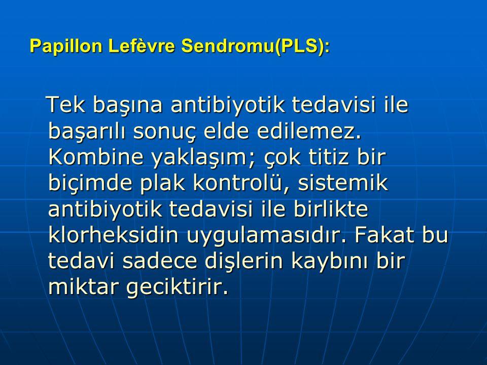 Papillon Lefèvre Sendromu(PLS): Tek başına antibiyotik tedavisi ile başarılı sonuç elde edilemez. Kombine yaklaşım; çok titiz bir biçimde plak kontrol