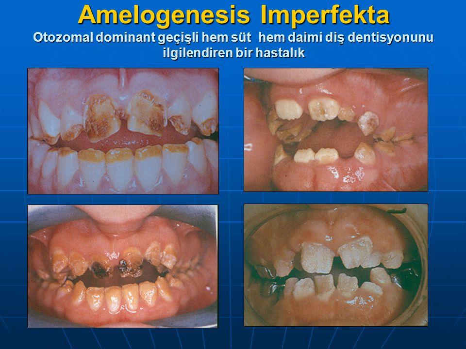 Amelogenesis Imperfekta Otozomal dominant geçişli hem süt hem daimi diş dentisyonunu ilgilendiren bir hastalık