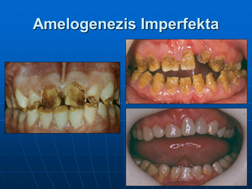 Dentinogenezis Imperfekta