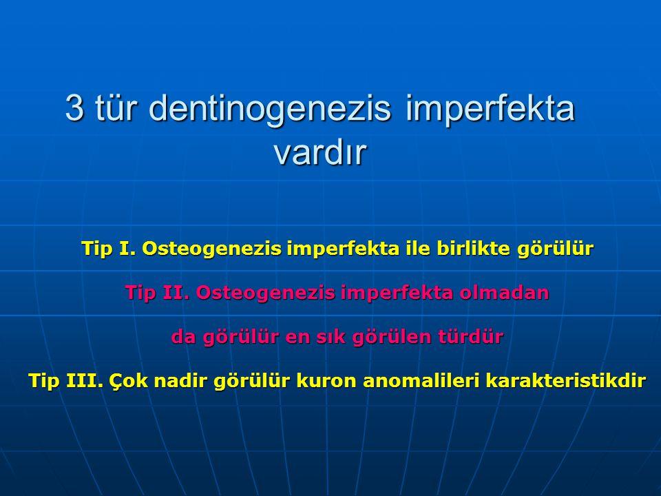 3 tür dentinogenezis imperfekta vardır Tip I. Osteogenezis imperfekta ile birlikte görülür Tip II. Osteogenezis imperfekta olmadan da görülür en sık g
