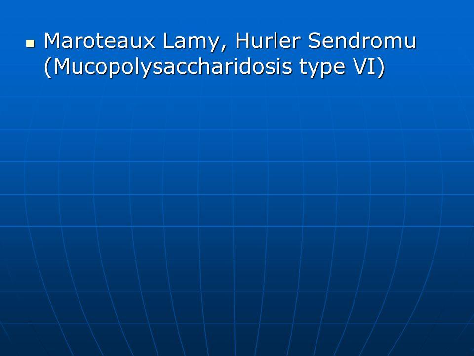 Maroteaux Lamy, Hurler Sendromu (Mucopolysaccharidosis type VI) Maroteaux Lamy, Hurler Sendromu (Mucopolysaccharidosis type VI)