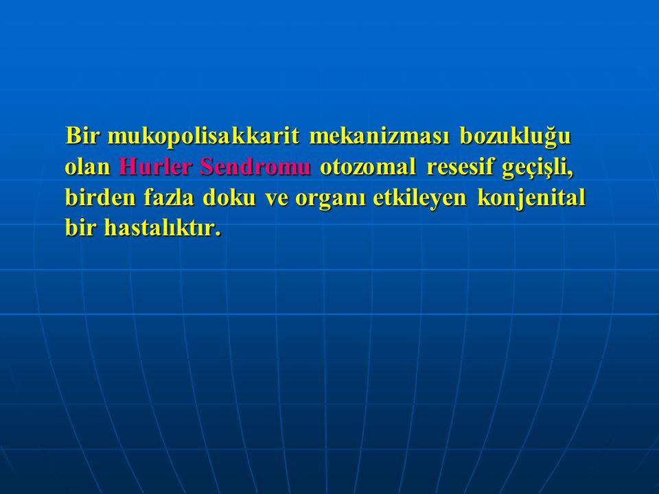 Bir mukopolisakkarit mekanizması bozukluğu olan Hurler Sendromu otozomal resesif geçişli, birden fazla doku ve organı etkileyen konjenital bir hastalı