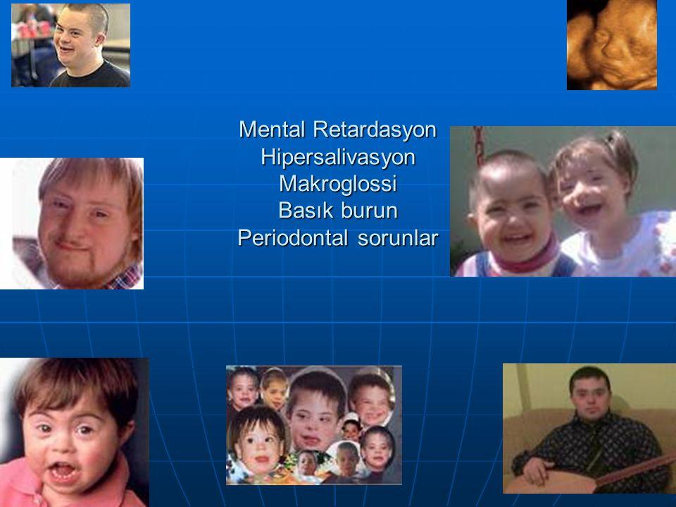 Mental Retardasyon Hipersalivasyon Makroglossi Basık burun Periodontal sorunlar