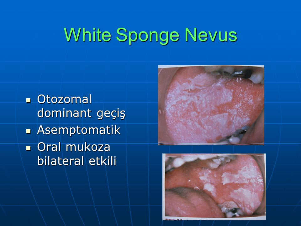 White Sponge Nevus Otozomal dominant geçiş Otozomal dominant geçiş Asemptomatik Asemptomatik Oral mukoza bilateral etkili Oral mukoza bilateral etkili