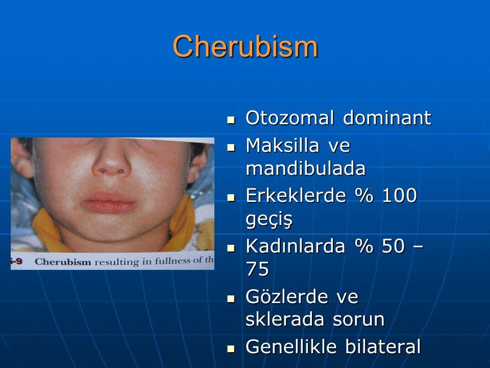 Cherubism Otozomal dominant Otozomal dominant Maksilla ve mandibulada Maksilla ve mandibulada Erkeklerde % 100 geçiş Erkeklerde % 100 geçiş Kadınlarda