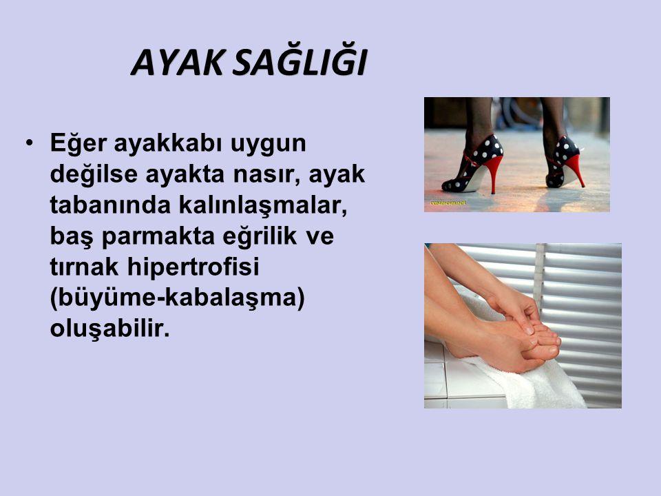 AYAK SAĞLIĞI Eğer ayakkabı uygun değilse ayakta nasır, ayak tabanında kalınlaşmalar, baş parmakta eğrilik ve tırnak hipertrofisi (büyüme-kabalaşma) ol