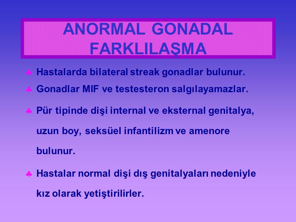  Hastalarda bilateral streak gonadlar bulunur.  Gonadlar MIF ve testesteron salgılayamazlar.  Pür tipinde dişi internal ve eksternal genitalya, uzu