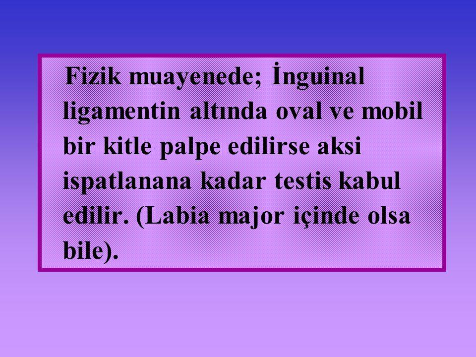 Fizik muayenede; İnguinal ligamentin altında oval ve mobil bir kitle palpe edilirse aksi ispatlanana kadar testis kabul edilir. (Labia major içinde ol