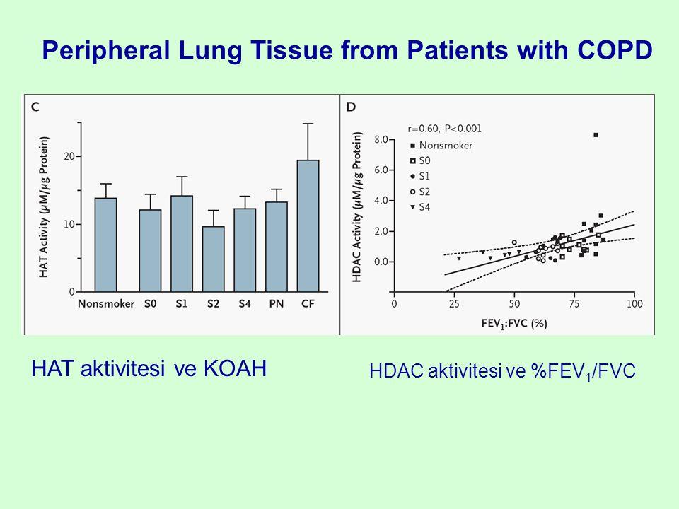 HAT aktivitesi ve KOAH HDAC aktivitesi ve %FEV 1 /FVC Peripheral Lung Tissue from Patients with COPD