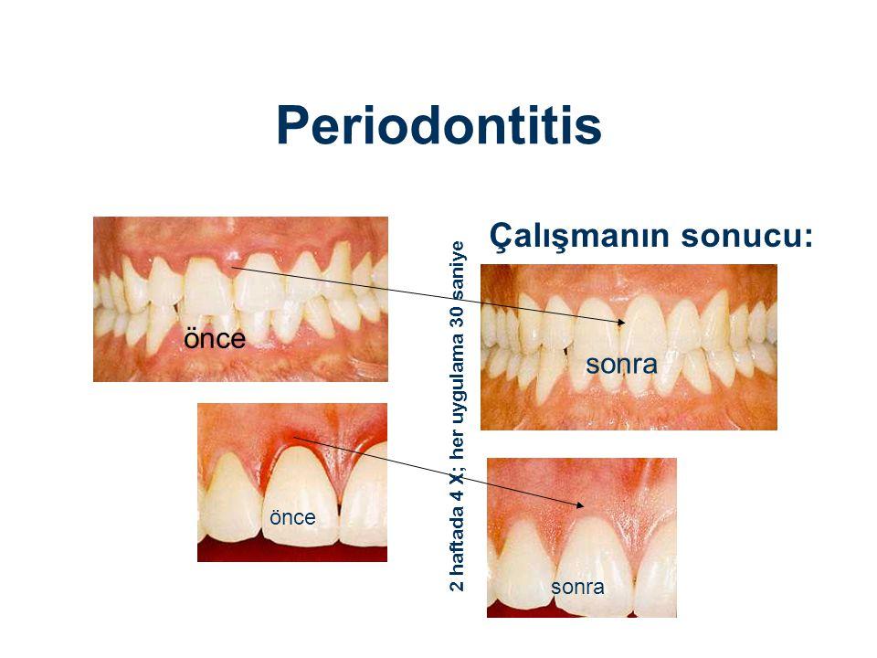 Çalışmanın sonucu: önce sonra önce sonra 2 haftada 4 X; her uygulama 30 saniye Periodontitis