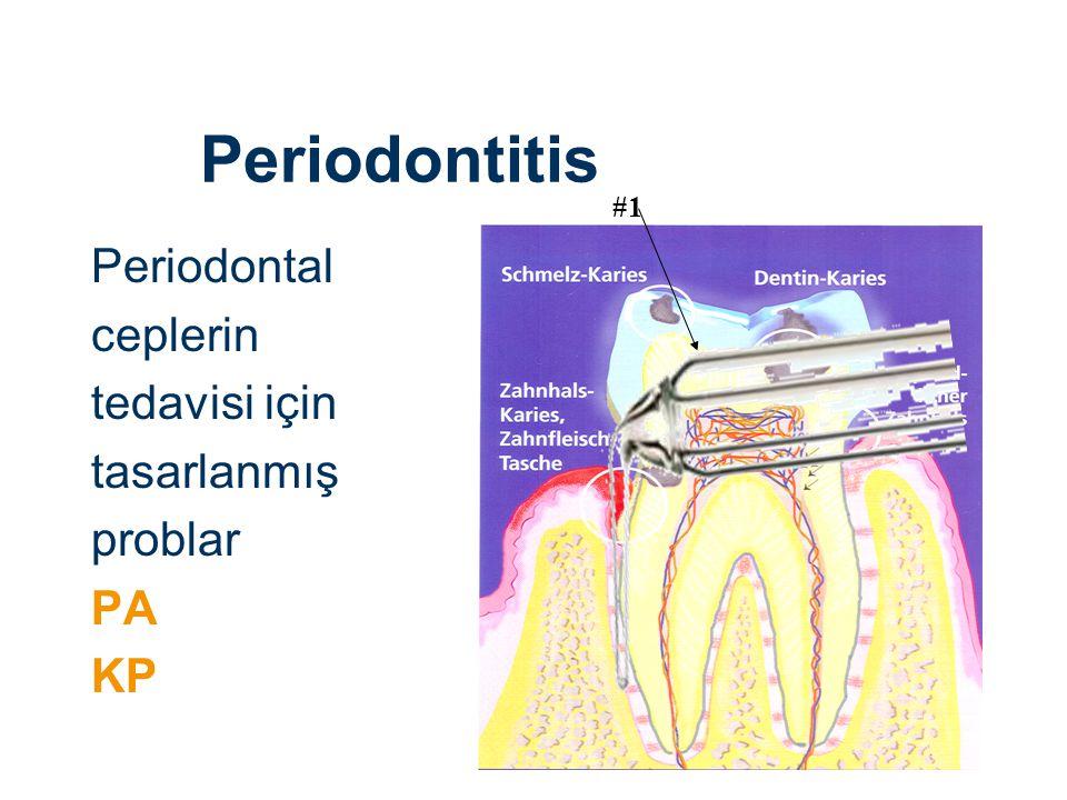 Periodontitis Periodontal ceplerin tedavisi için tasarlanmış problar PA KP #1