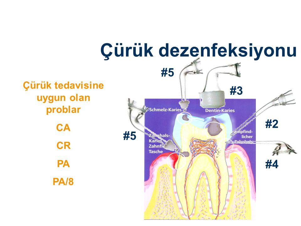 Çürük tedavisine uygun olan problar CA CR PA PA/8 #3 #2 #4 #5 Çürük dezenfeksiyonu