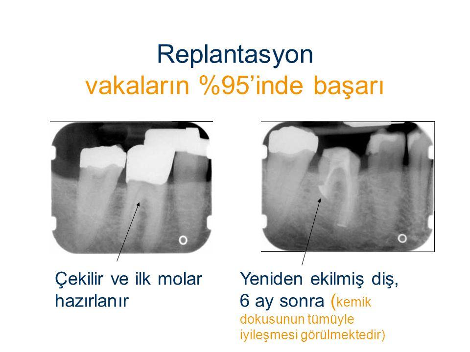Replantasyon vakaların %95'inde başarı Yeniden ekilmiş diş, 6 ay sonra ( kemik dokusunun tümüyle iyileşmesi görülmektedir) Çekilir ve ilk molar hazırl
