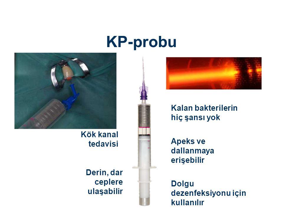KP-probu Kalan bakterilerin hiç şansı yok Derin, dar ceplere ulaşabilir Apeks ve dallanmaya erişebilir Dolgu dezenfeksiyonu için kullanılır Kök kanal