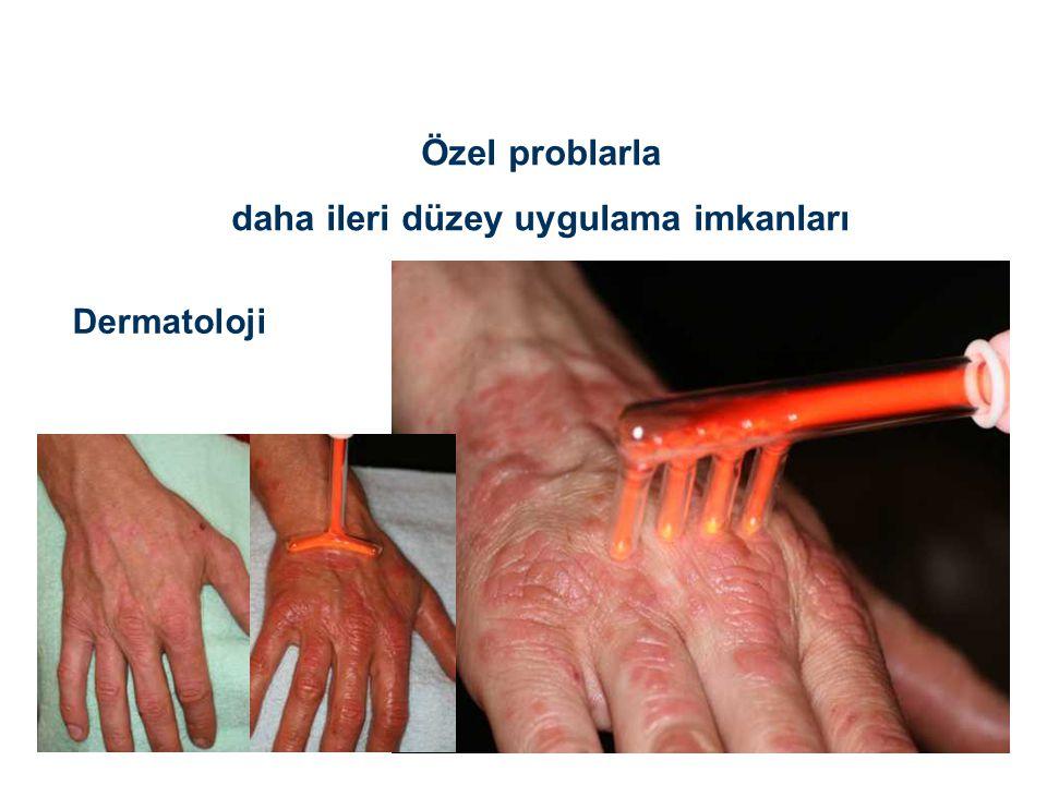 Özel problarla daha ileri düzey uygulama imkanları Dermatoloji